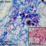 Nocardia - aspetto a microscopio